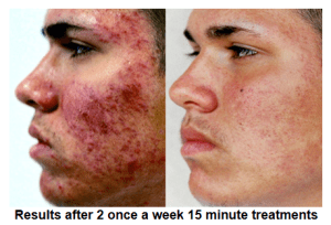 Zap Acne With This All Natural Treatment Citizens For