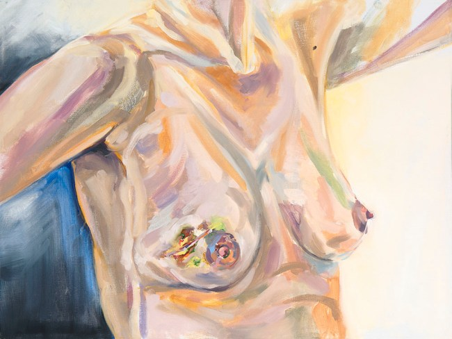 oil painting showing my breasts and bruising after MRI biopsies.