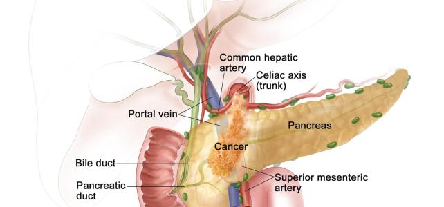 The more you know: hereditary pancreatic cancer
