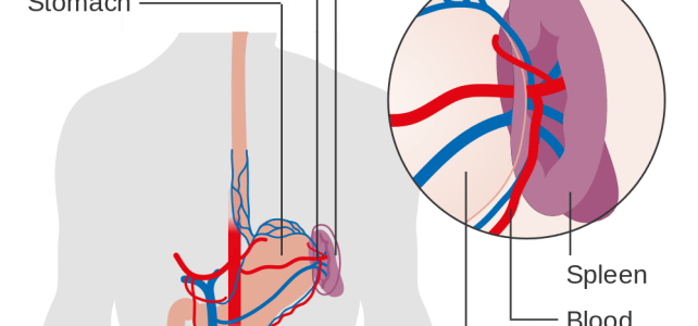 Understanding Vaccination after Spleen Removal (Splenectomy)