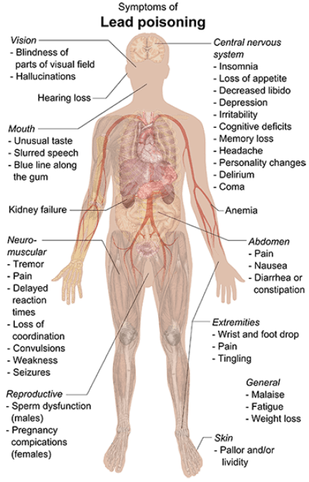 Image result for lead poisoning