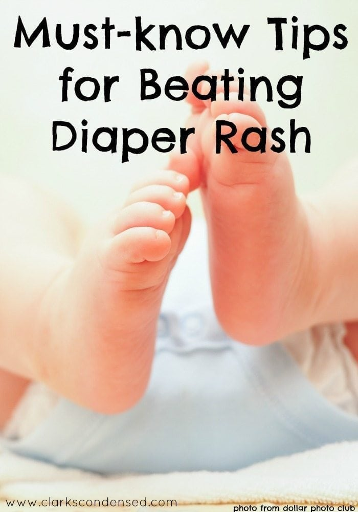 Tips for Preventing and Treating Diaper Rash
