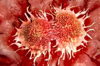 'Cancer Killing More People Than HIV, Malaria Combined'