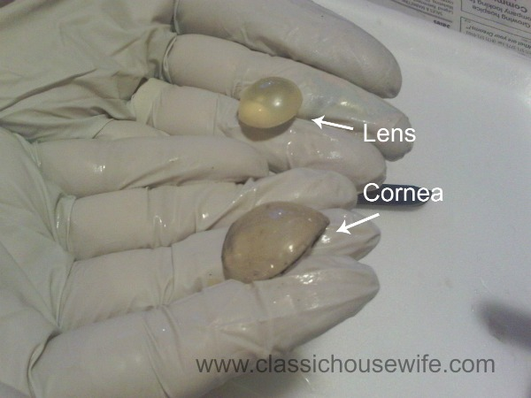 lens-cornea-dissection.jpg