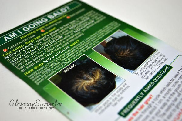 NovuHair: Nature's answer To Hair Loss