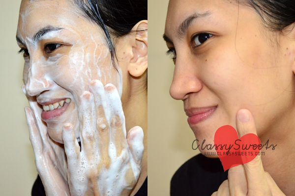 Ciracle Blackhead Soap: Your Key To A Blackhead-Free Face