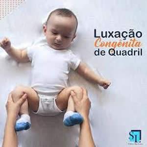 luxacao-congenita-quadril