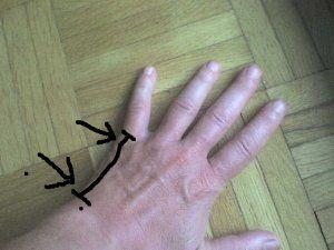 schmerzen an aussenkante der hand
