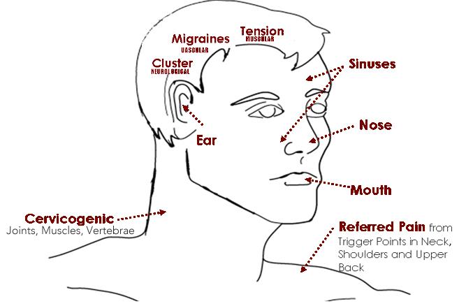 headaches diagram