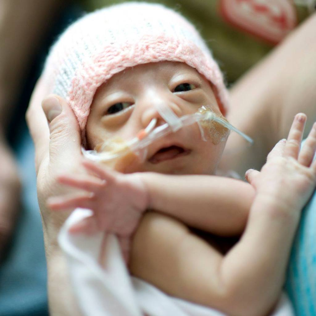 Newborn baby with tubes