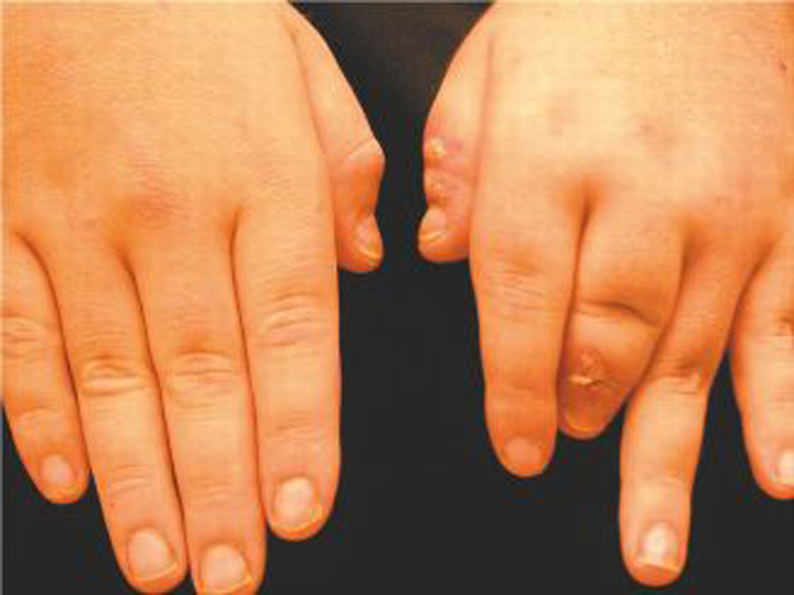 Destructive Arthritis Of The Third Digit