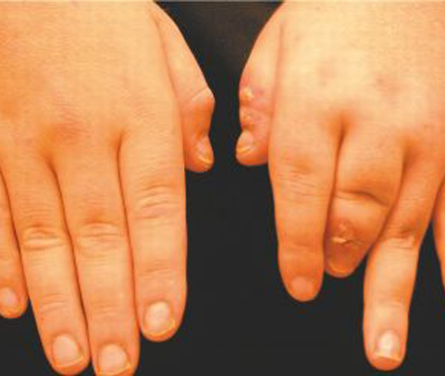 Destructive Arthritis Of The Third Digit