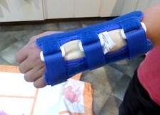 arm splint for buckle fracture