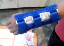 arm splint for buckle fracture