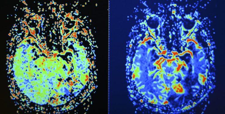 PTSD, brain scan, mri
