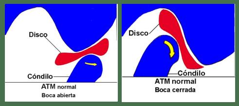 disco-condilo-atm-normal