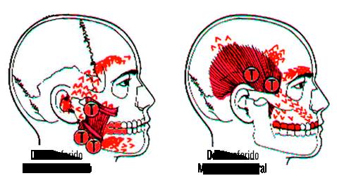 Trastornos Temporomandibulares - Clínica Baldor