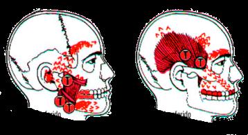 dolores-referidos-musculos-masetero-y-temporal