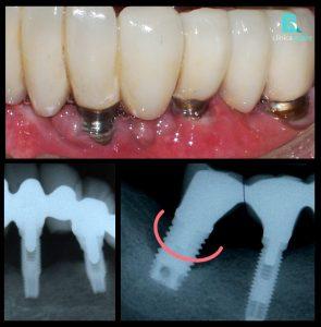 perdida-de-hueso-en-implantes