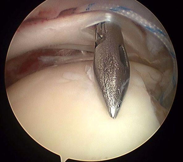 Tendinitis o Rotura del Manguito Rotador.Claves para solucionarla