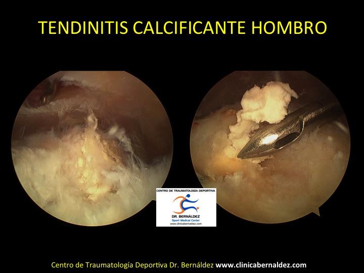 TENDINITIS CALCIFICANTE GRANDE DR BERNALDEZ