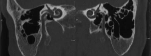 3a) Temporal Bone CT: underdeveloped mastoides.