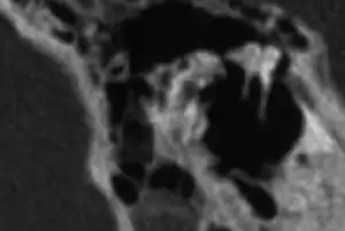 Middle ear ossicles, Malleus and Incus, as seen in computorized tomography of teh temporal bone at tha sagital plane, right ear.