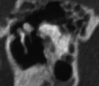 Middle era ossicles as seen  in the sagital plane of the CT scan of the temporal bone.