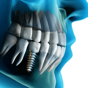 clinica-dental-magallanes-madrid-implantes-03