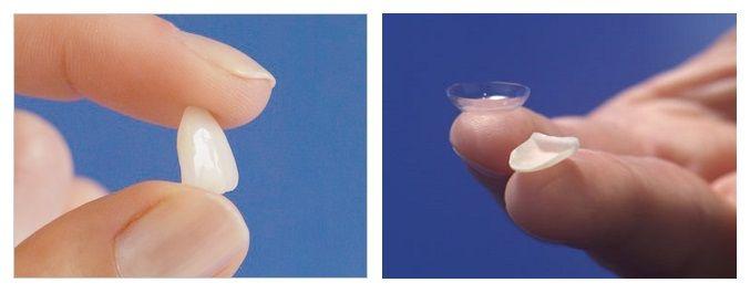 las-carillas-dentales-pueden-resolver-la-mayoría-o-incluso-la-totalidad-de-tus-problemas-dentales-cosméticos