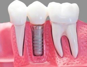 implante-dental-imagen