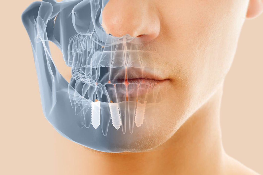 Implantes Dentales Salou Tarragona