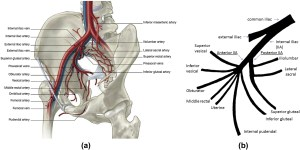 Emergency puted tomography for acute pelvic trauma