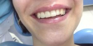 odontólogo zaragoza centro