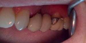 prótesis dentales en zaragoza