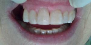 estética dental de calidad