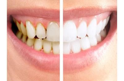 dentes escurecidos
