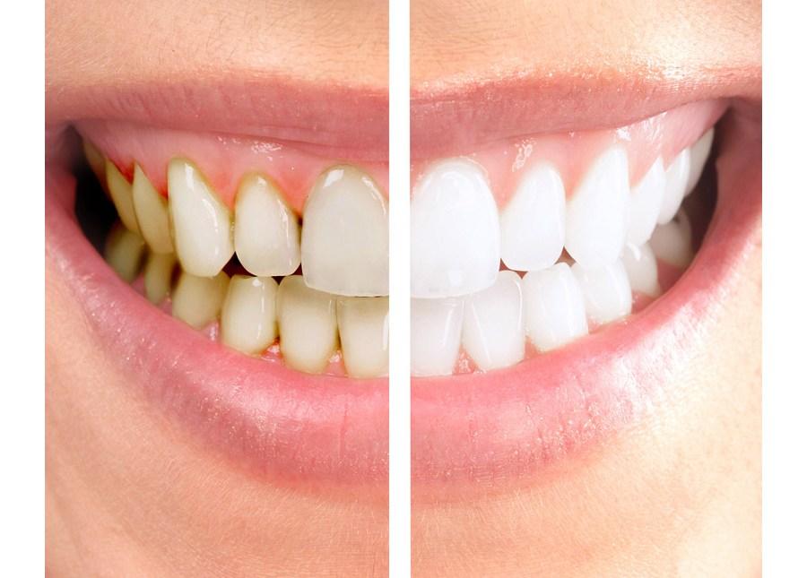 Dentes escurecidos: por que acontecem?