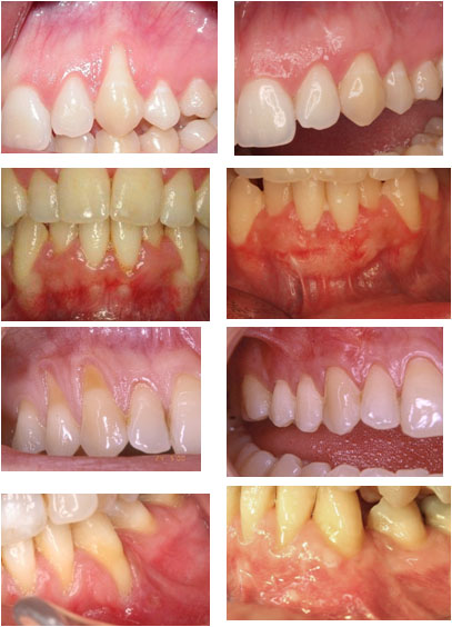 recesion-gingival.jpg