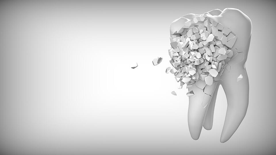 O branqueamento dentário desgasta os dentes?
