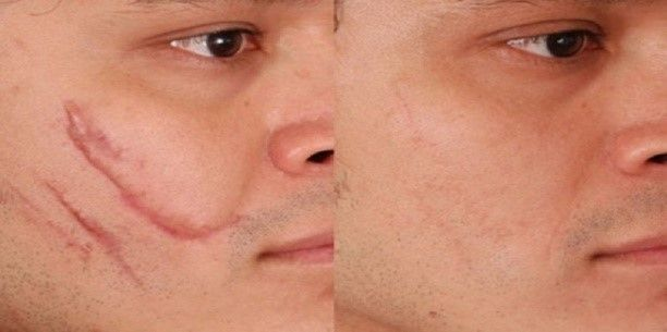 Scars removal with plastic surgery