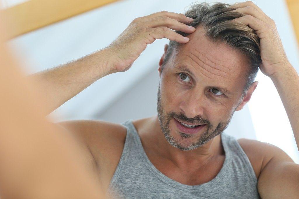 cabello, lifting del cuero cabelludo