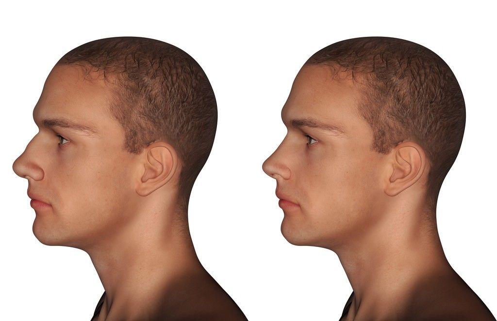 Plastia del tabique nasal