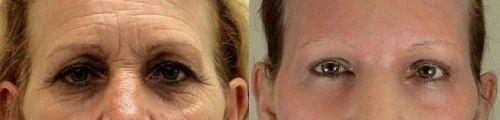 Blefaroplastia sin cirugía - antes y después