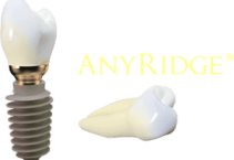 anyridge_implantat