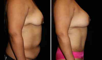 TummyTuck - Breast Augmentation Mastopexy 350cc