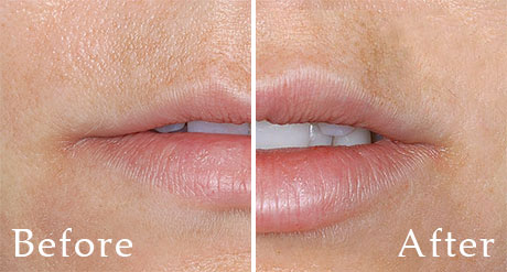 Lip Augmentation Restylane - Dallas Medspa and Laser Center | Clinique Dallas