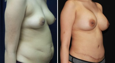 Abdominoplasty | Liposuction to Abdomen/Flanks | Breast Augmentation - R:450cc / L:400cc