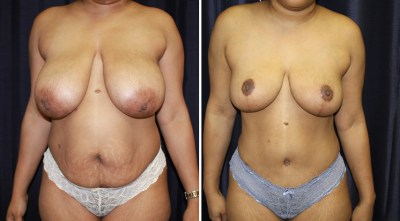 Tummy Tuck - Breast Augmentation Mastopexy