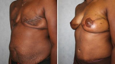 DIEP Flap - Nipple Reconstruction + Tattoo